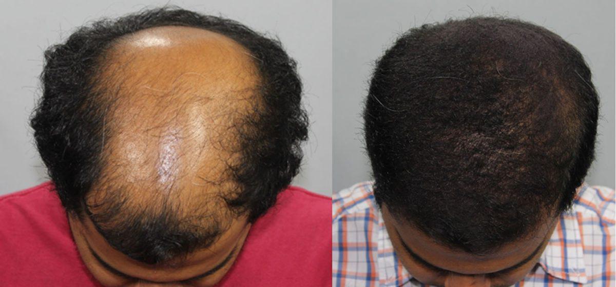 hairtransplant-1200x560.jpg